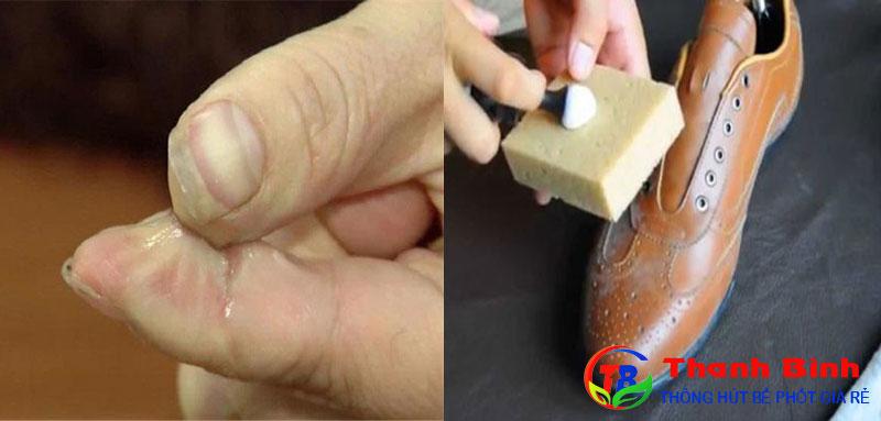 Cách tẩy keo 502 dính vào da tay, giày da
